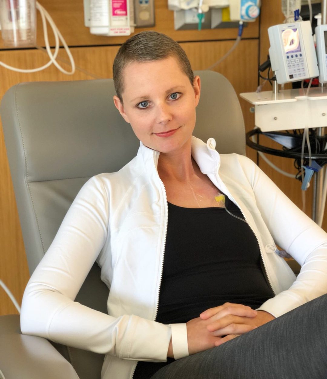 breast cancer, lindsy matthews, chemo, mastectomy, radiation
